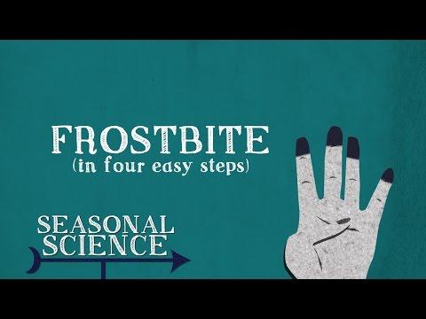 Frostbite | Seasonal Science | UNC-TV