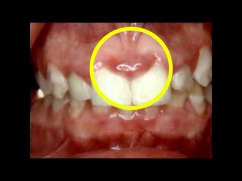 How Periodontal Disease Affects Pregnancy | Lake Merritt Dental, Oakland, CA