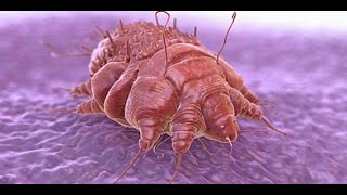 Where Do Scabies Come From How To Kill Scabies Mites On Bedding Get R