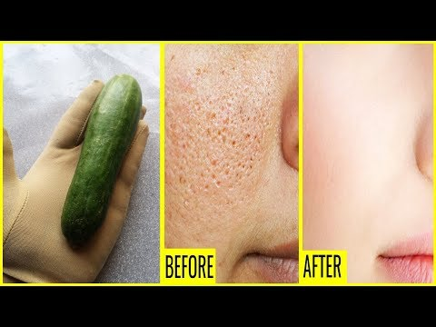 Homemade Face Toner for Shrink and Reduce Your Open Large Pores - Skin Care Tips In Urdu