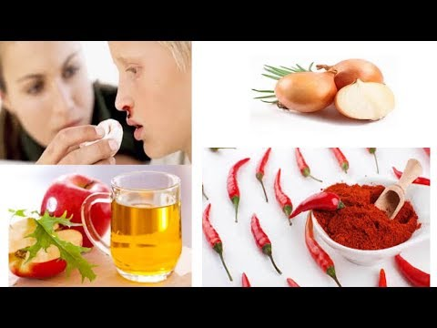 Why NoseBleed  – NOSE BLEEDING Home Remedies – Epistaxis – Causes Natural health cures