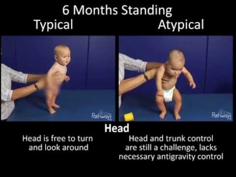 6 Month Old Typical & Atypical Motor Development Side by Side