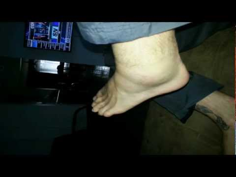 Terrible ankle sprain (grade 3)