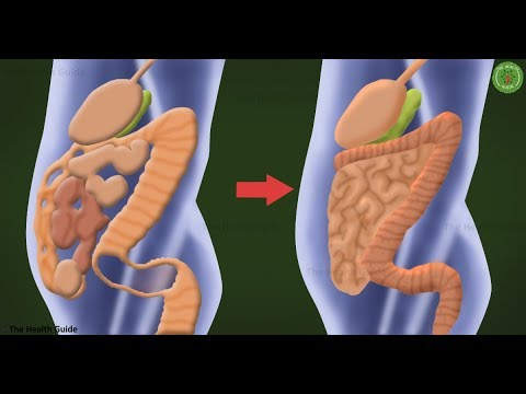 How To Remove 20 Pounds Of Toxic Waste From Your Colon – Recipe
