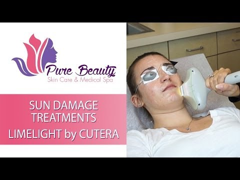 Sun Damaged Skin Laser Treatment in Orange County by Pure Beauty Skin Care and Medical Spa