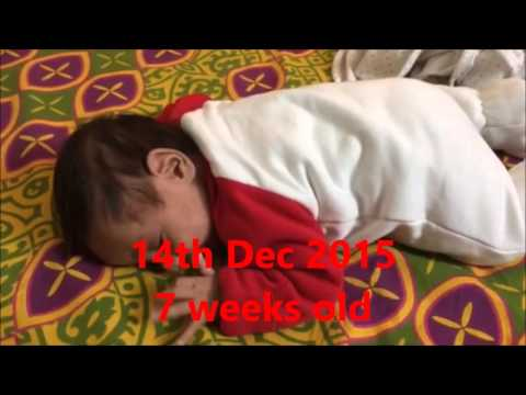 Tummy time and development of head control