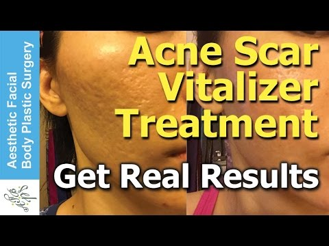 Treat All Types of Acne Scars in One Treatment in 2 Hours with the New Acne Scar Vitalizer Treatment