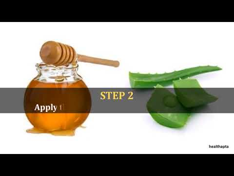 Aloe vera and Honey Mask for Acne