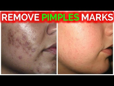Remove Pimple Marks / Acne Marks / Dark Spots / Black Spots Fast At Home Remedies/ Rabia Skin Care