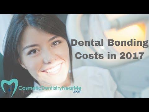 Dental Bonding Costs in 2017