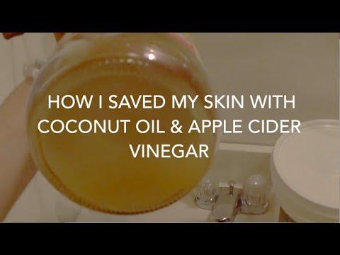 I SAVED MY SKIN with Apple Cider Vinegar & Coconut Oil!