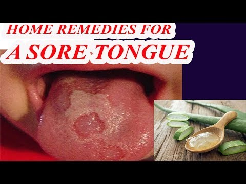 Sore Tongue Treatment - Home Remedies for a Sore Tongue