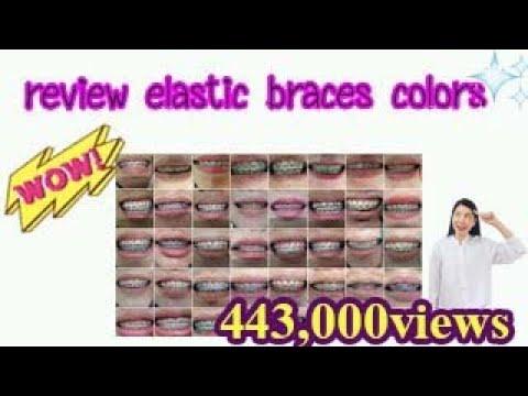 review elastic braces colors