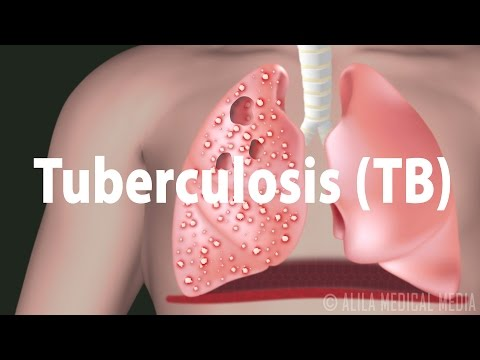 Tuberculosis (TB): Progression of the Disease, Latent and Active Infections.