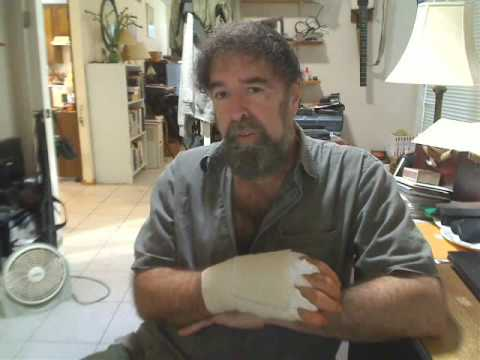 Trigger Finger Surgery Post-OP, aftermath - explained by Mickey Stein (Trigger Finger Part 2)