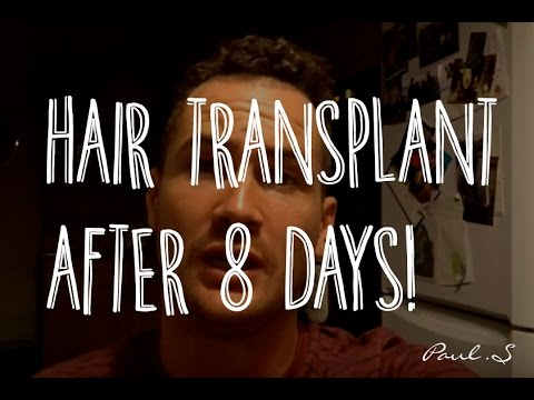 CAN YOU GO TO THE GYM AFTER A HAIR TRANSPLANT? DAY 8 UPDATE AD