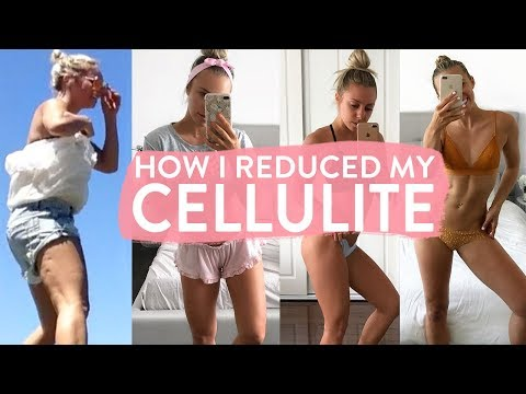 How I Reduced My CELLULITE | Tips, Food, Exercises & What Actually Works!