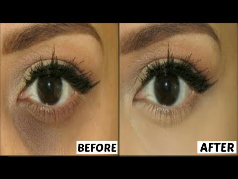How to Get Rid of Puffiness Of Eyes & Dark Circles || How To Remove Bags Under Your Eyes Naturally