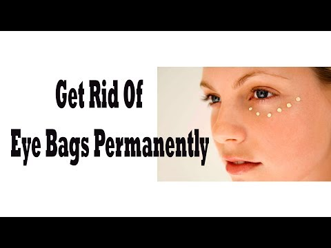 how to get rid of eye bags || how to get rid of dark circles
