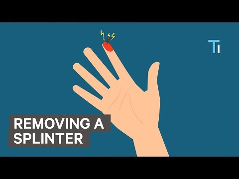 How To Remove A Splinter
