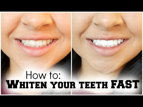 How To Whiten Your Teeth FAST