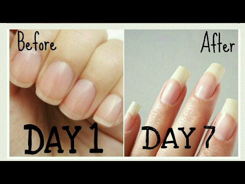 DIY | Grow your nails super fast,long n strong in just 7 days!! 100% guarenteed | 100% natural