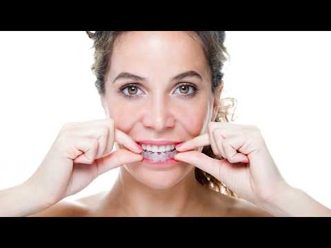 Clear Braces New York NY - OrthoSnap New York - Call (917) 924-9938