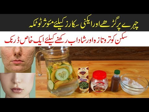 Get Rid of Acne Scars with Homemade Effective Remedies Urdu HIndi