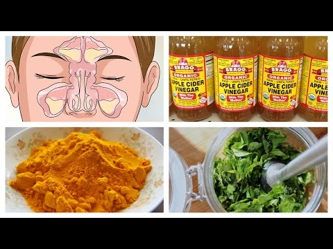 Best Natural Home Remedies for Sinusitis