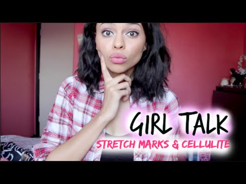 Girl Talk: Stretch Marks & Cellulite