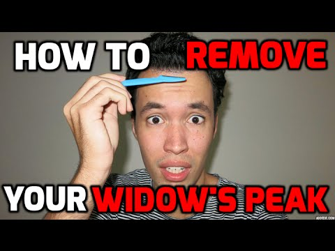 HOW TO REMOVE YOUR WIDOW'S PEAK (TUTORIAL)