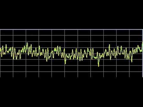 Bone Diseases - Rife Frequencies