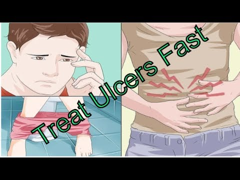 How To Treat Ulcers -How To Overcome Stomach Ulcers Fast-Stomach Ulcers: Natural Remedies That Work