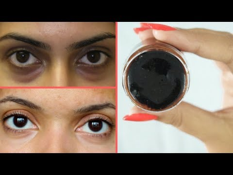 Use this Eye Serum to get rid of Dark Circles and Puffiness Fast | Rabia Skin Care