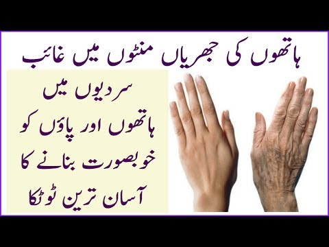 See the Magic || How to Remove Wrinkles From Hands || Get Beautiful Hands & Feet