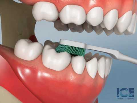 Brushing Lower Teeth
