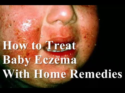 How to Treat Eczema on Face : How to Treat Baby Eczema with Home Remedies