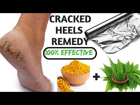 Natural home remedy for cracked heels in Hindi I DIY tips & solution for cracked heels I  AVNI