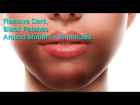 How to Remove Dark Black Patches, Dark Spots, Hyperpigmentation, Around Your Mouth Naturally