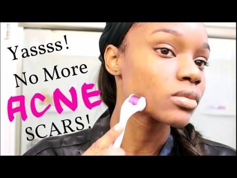 How I Got Rid Of My Acne Scars and Dark Spots | BanishAcneScars.com
