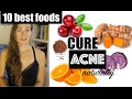 Top 10 BEST Foods to Cure Acne Naturally - The Acne Series