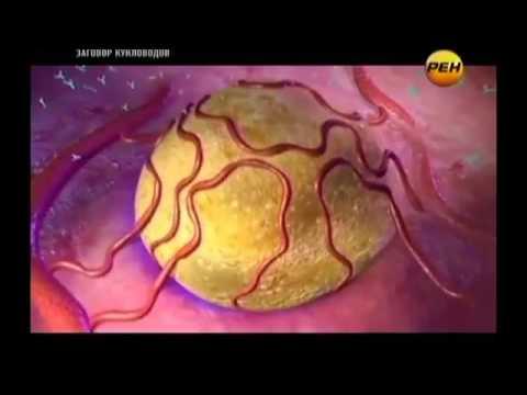 Видео лечения содой рака с метастазами