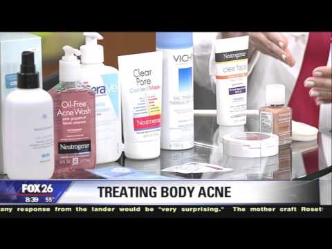 Dr. Sherry Ingraham on Treating Body Acne  (Bacne)
