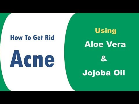 Tips To Use Aloe Vera And Jojoba Oil For Acne - How To Get Rid Acne By Home Remedies
