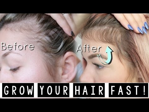 HOW I GREW MY HAIR BACK! (YOU NEED THIS!) WITH MONAT