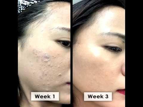 Bamboo Charcoal Handmade Soap for Acne Prone Skin   The Healing Tree