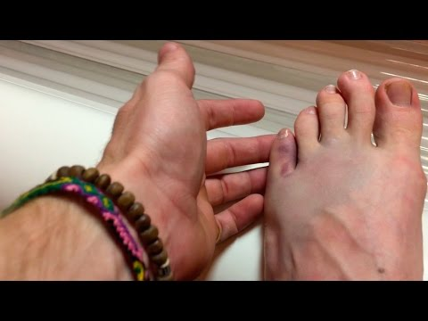 Broke My Pinky Toe?!