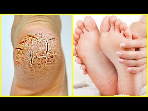 Cracked Heels Treatment Instant at Home | Get Soft Feet in 3 Days | फटी एड़ियां से छुटकारा पाये