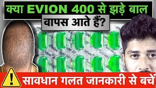 VITAMIN E Capsule For HAIR GROWTH , SKIN AND HEALTH. EVION 400 Uses and Side Effects.