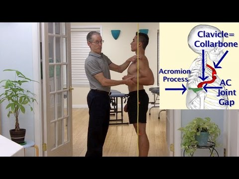 How to Evaluate Your Posture as Viewed from the Side